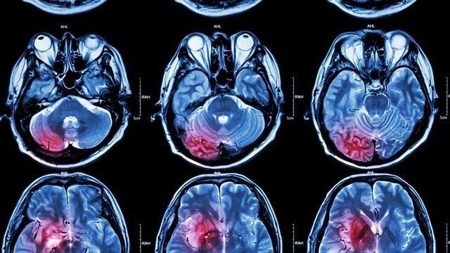 Breaking New Ground in the Battle Against Complex Human Pediatric Brain Cancers