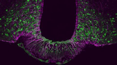 Identity Crisis of Satiety Neurons Leads to Obesity