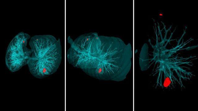 AI for Lung Cancer Diagnostics