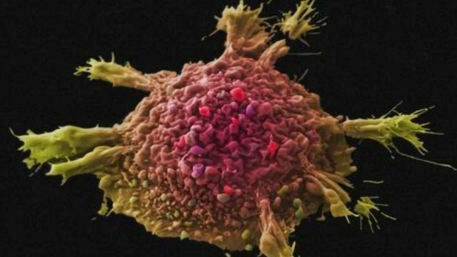 The Spectacular World of Cancer Cell Imaging [Flipbook]