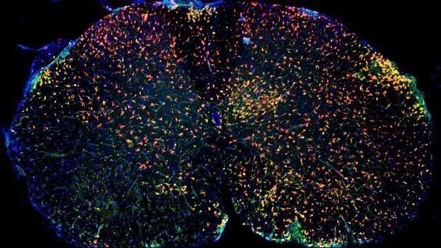 Neuroinflammatory Cell Atlas Could Aid Multiple Sclerosis Therapies