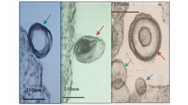 Exosome-hacking Boosts Leishmania Infections