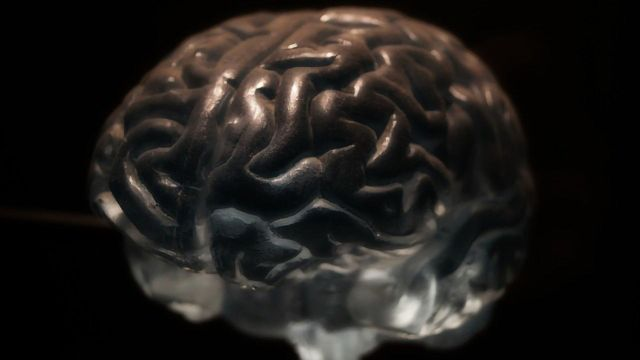 Normal Brain Aging Patterns Occur at a Faster Rate in People With Psychosis