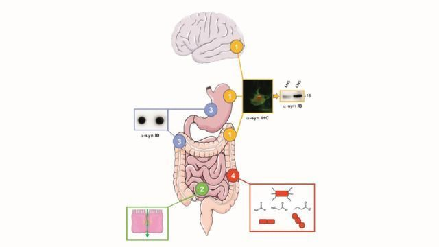 The Gut's Influence in Parkinson's Disease: Hype or Hope?
