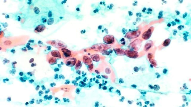 Trojan Horse Drug Kills Cancer Cells from Within