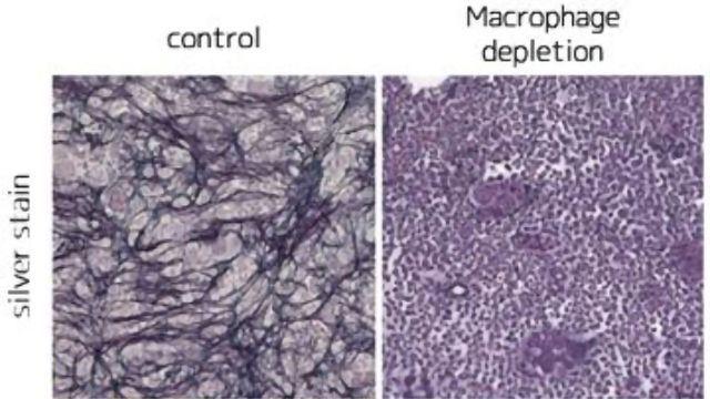 Vitamin D and Macrophages Drive Bone Marrow Disease
