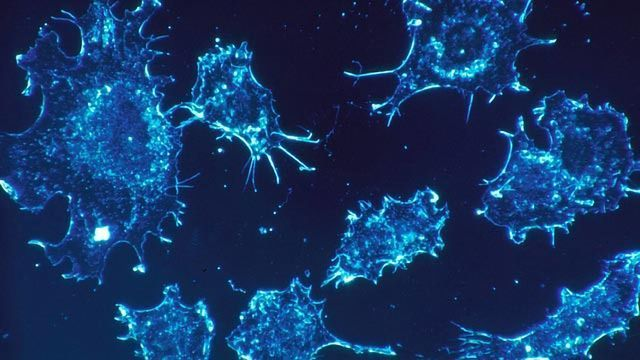 Could an Over-abundance of Energy Be Fueling Cancer?