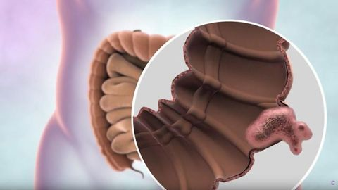 What is Bowel Cancer?