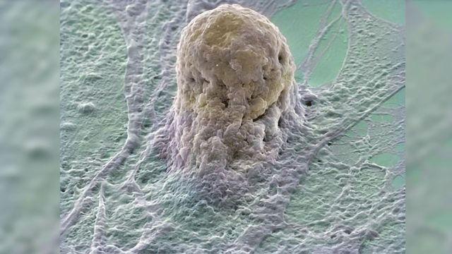 Measles Virus Vector Used to Streamline Cell Reprogramming