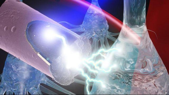 Ultrasmall Electrodes Could Make for Safer Neural Stimulation