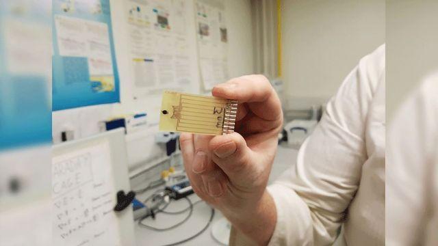 Needle-shaped Sensors Can Detect Multiple Sepsis Indicators