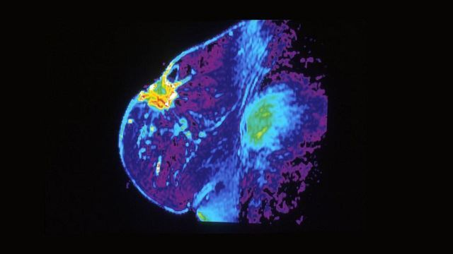 New Machine Learning Method Could Prevent Unnecessary Breast Surgery