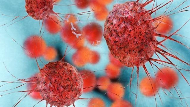 Compound Could Help Treat Ovarian Cancer