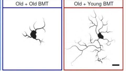 Young Bone Marrow Rejuvenates Aging Mouse Brains, New Study Finds
