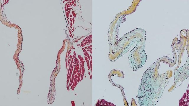 Revealing the Critical Role of Heart-derived Macrophages