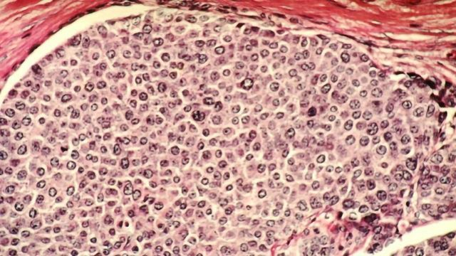 Devising a Potential Attack Strategy for Aggressive Breast Cancer