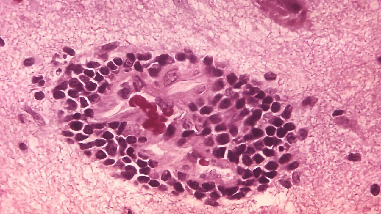 Establishing Immune Memory to Rabies in the CNS