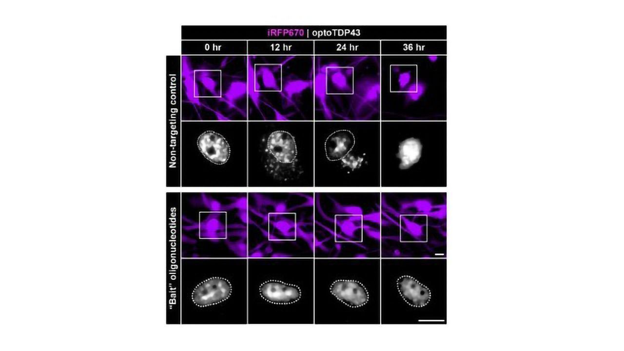 "Researchers ""Bait"" Proteins Behind Neurodegeneration"