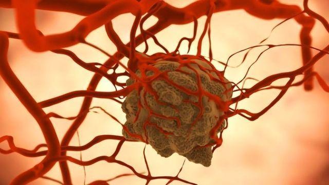 Theranostics: Therapy Plus Diagnostics Targets Specific Tumors