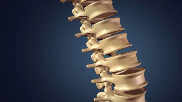Exosome-mediated Neuroprotection Investigated in Spina Bifida