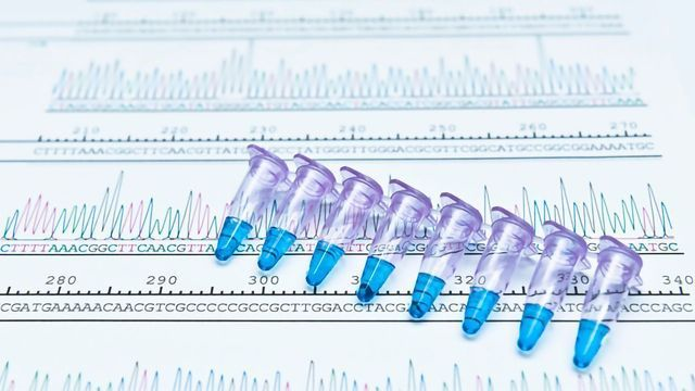 Troubleshooting in PCR – The Essential Checklist