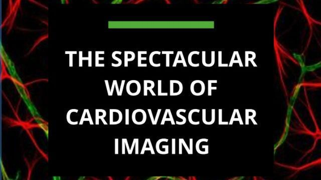 The Spectacular World of Cardiovascular Imaging