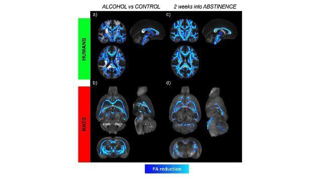 Alcohol Brain Damage >> Alcohol Induced Brain Damage Might Continue For Weeks During