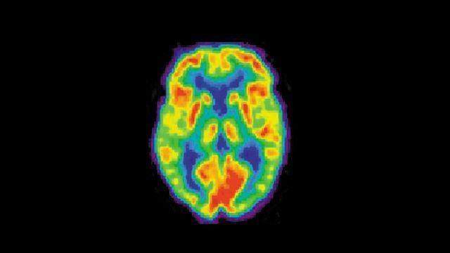 PET Biomarker Predicts Alzheimer's Progression