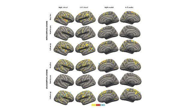 High-strength MRI Tracks MS Progression