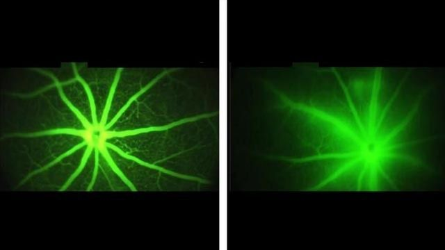 Experimental Drug Delivers One-Two Punch to Vision Loss