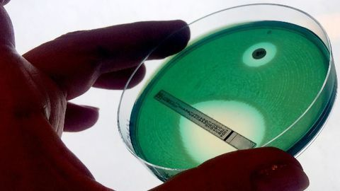 Antimicrobial Resistance: Drivers, Diagnostics and DNA