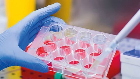 Jackson ImmunoResearch Launches Secondary Antibodies for VHH Discovery