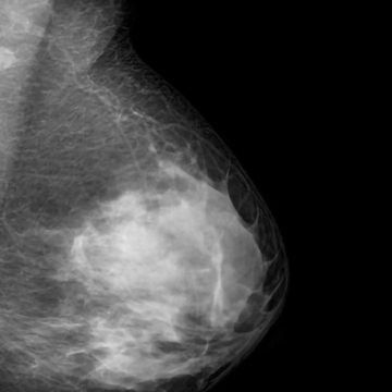 Blood Test Detects 16 Out of 18 Breast Cancer Relapse Cases