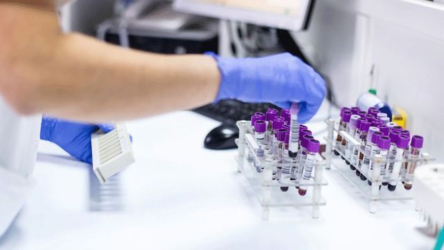 Flow Cytometry in the Clinic