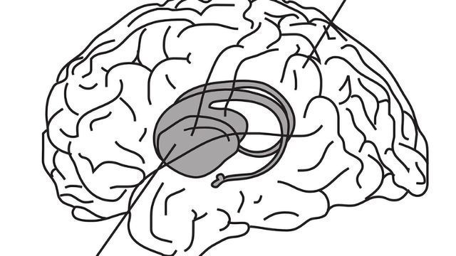 Sleep Frees the Hippocampus for New Memories