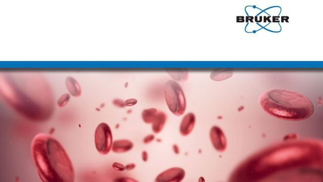Quantify 500 Plasma Proteins in 11.5 Minutes Using timsTOF Pro With PASEF and 4D Feature Alignment