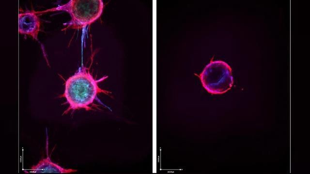 Team Discover How Cancer Hijacks Wound Healing to Grow and Spread