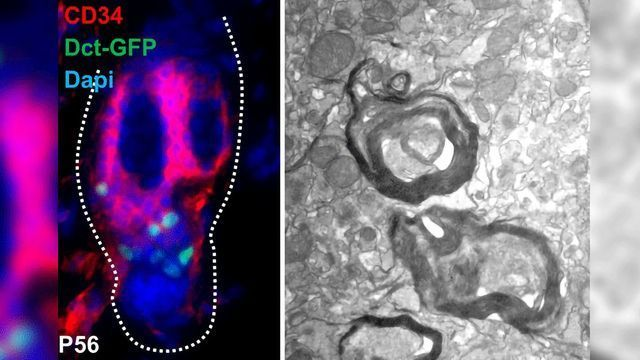 Skin-derived Stem Cell has Potential to Regenerate Myelin Sheath