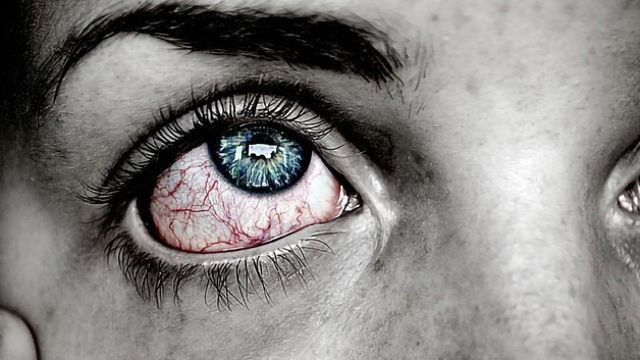 DNase Eye Drops for Treating Severe Dry Eye – Promising Clinical Trial Results