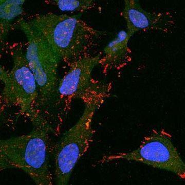 """Metabolic Fingerprint"" Could Help Treat, Diagnose and Prevent Cervical Cancer"