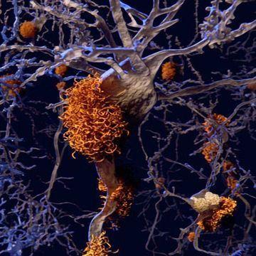 """Single-cell Sequencing Creates """"Molecular Map"""" of Alzheimer's Disease"""