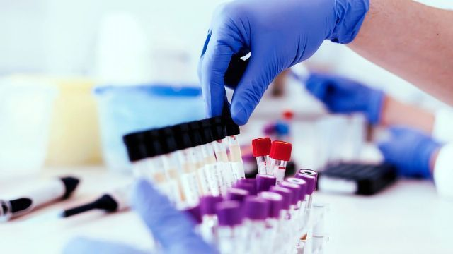 A Better Lifecycle for Analytical Methods?