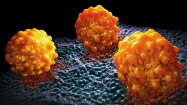 Prostate Cancer Marker PSA Acts as a Cancer Catalyst Aiding Its Spread