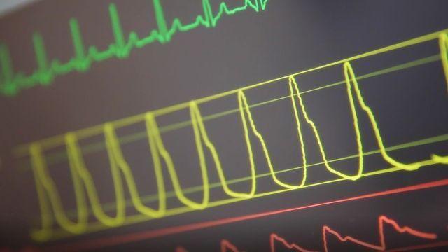 Algorithm Predicts Intensive Care Survival Rate