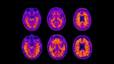 Poor Money Management Correlates With Amyloid Plaque Buildup in Old Age