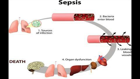 Metabolism-Immunology Interaction Likely to Be Important for Understanding Sepsis
