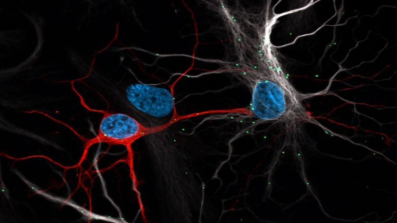 Astrocytes Protect Neurons From Toxic Buildup