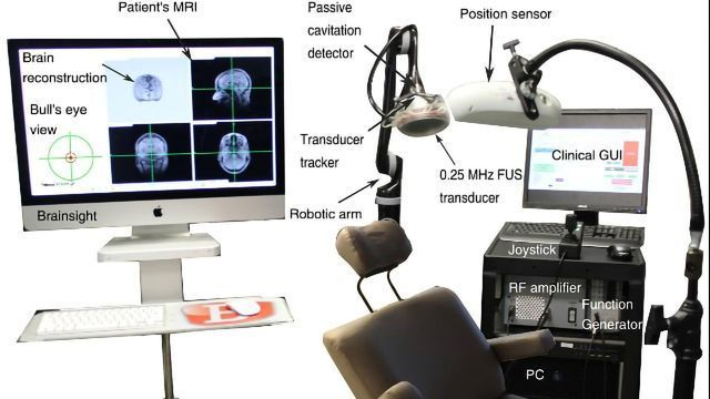 New Ultrasound Method Restores Dopaminergic Pathway in Early Stages