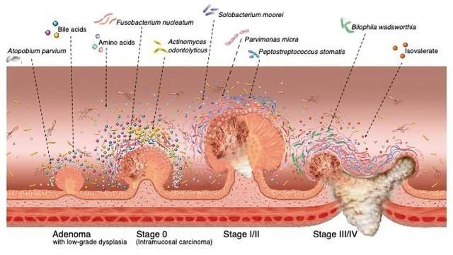 A Gut Feeling: Microbiome Changes Could Help Early Detection of Colorectal Cancer