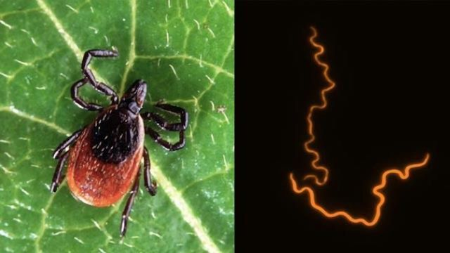 Cellular Component That Contributes to Lyme Arthritis Uncovered
